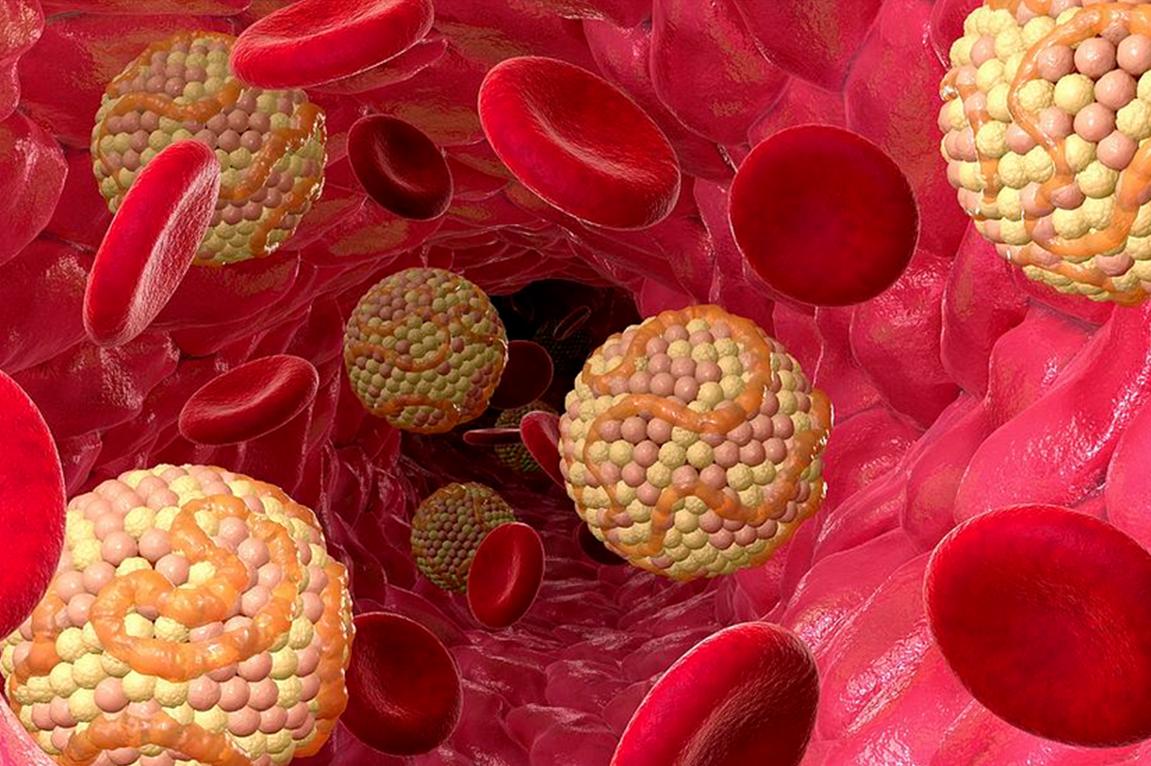 Как быстро и эффективно снизить холестерин в крови медикаментами