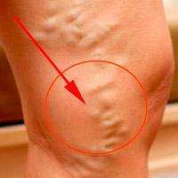 Себорейный кератоз кожи: что это и как лечить