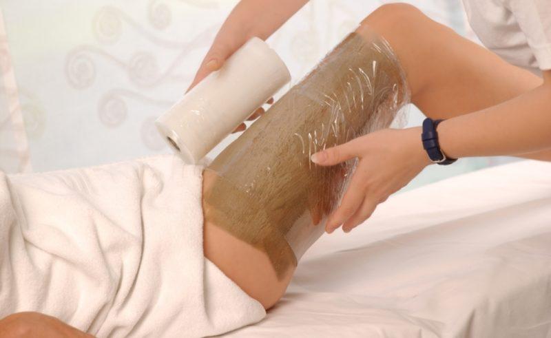 Лечение варикоза вен на ногах народными средствами в домашних условиях