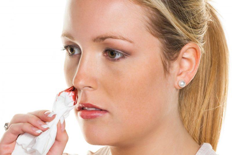 Сонник разбили нос в кровь