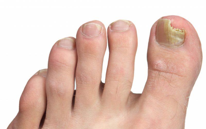 Грибок ногтей на ногах чем лечить