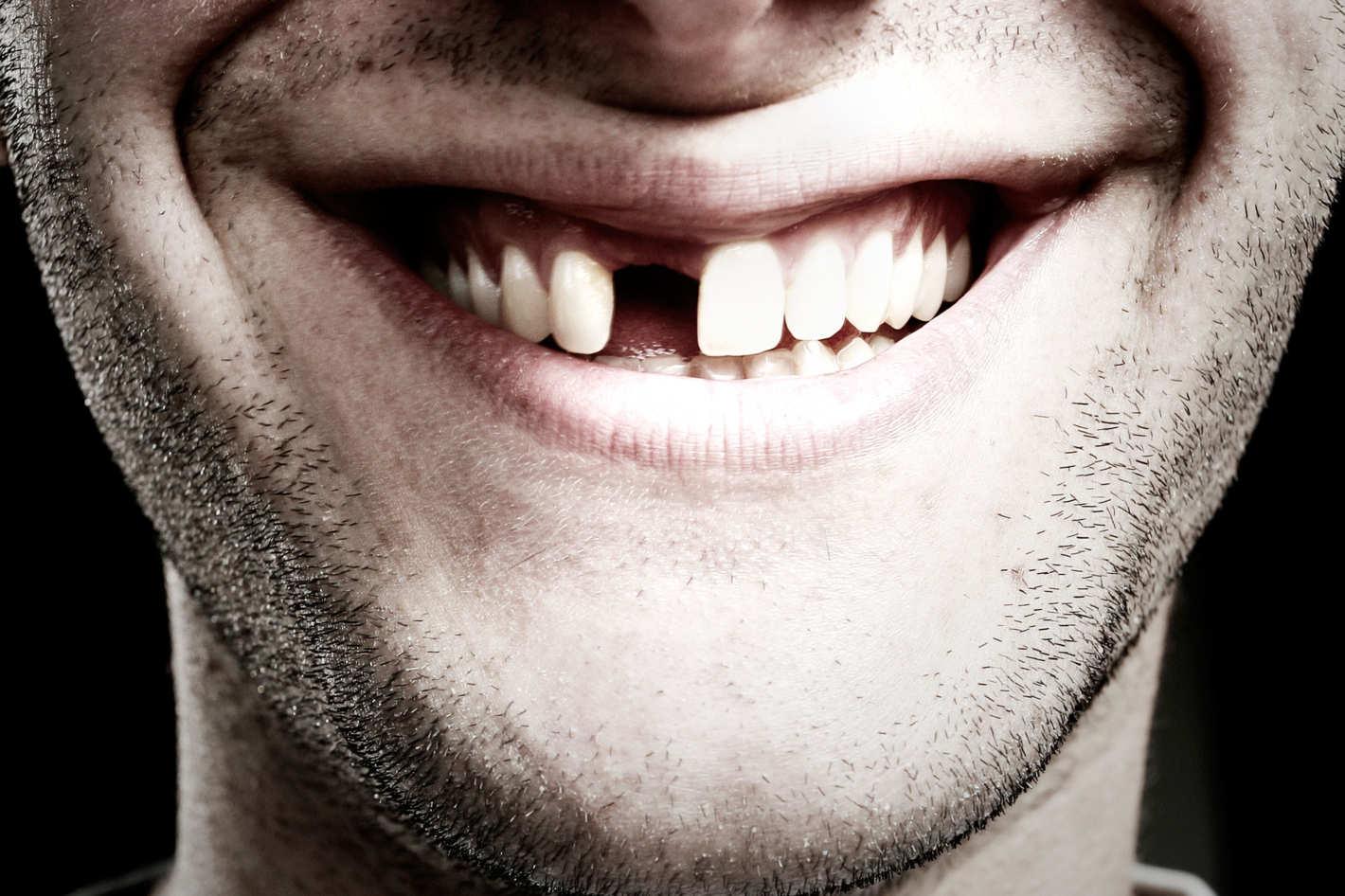Сон выпадают зубы без боли и крови, сонник Миллера, Фрейд, у ребенка, растут новые