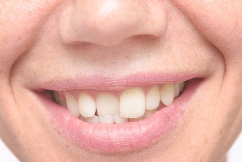 Сонник Зубы К чему снятся Зубы во сне женщине и мужчине