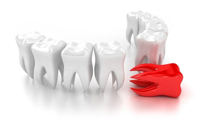 Сонник выпадают Зубы 😴 приснились, к чему снятся выпадают Зубы во сне видеть?