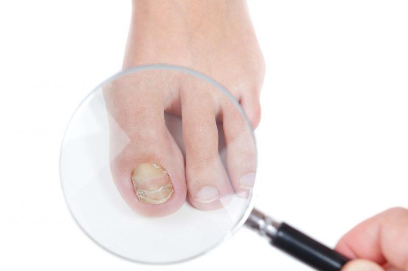 Чем лучше лечить грибок ногтей на ногах
