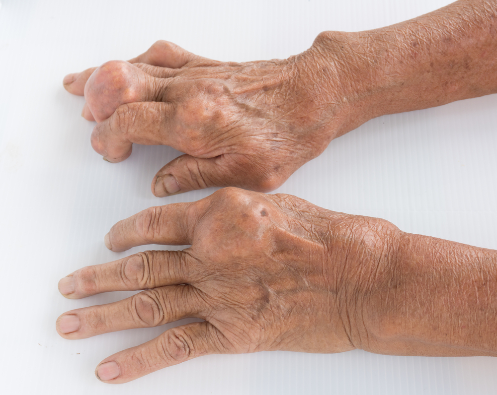 Подагра – симптомы и лечение у женщин и мужчин