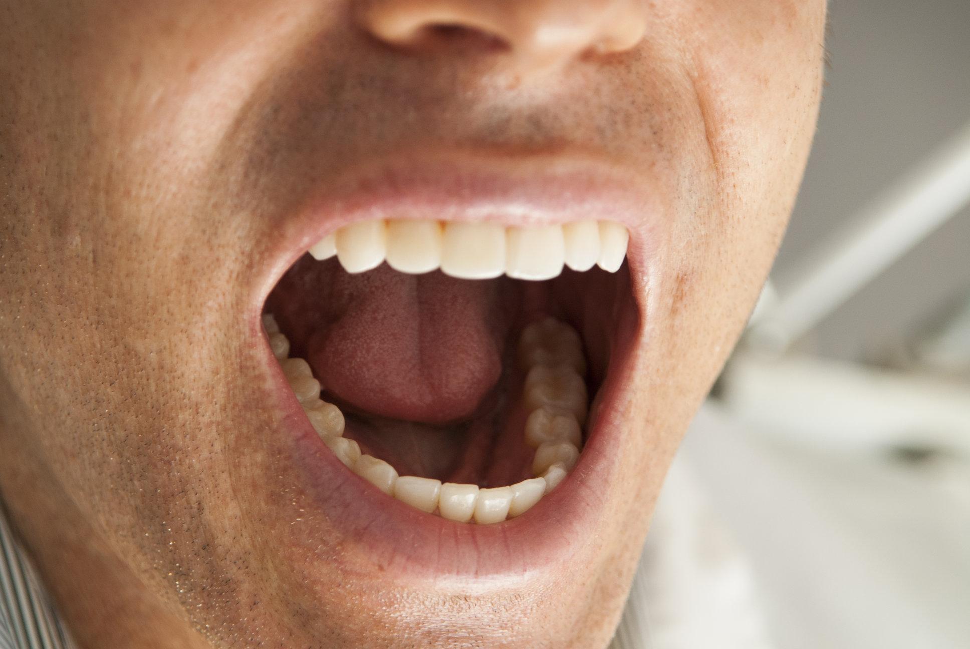 Картинки человек с открытым ртом
