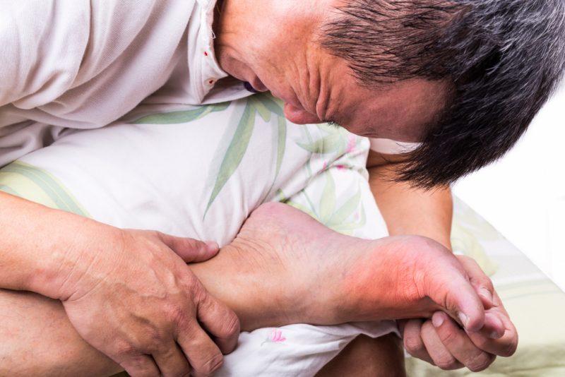 Подагра: признаки и симптомы болезни, лечение и профилактика, диета при подагре GoutAttack-800x534