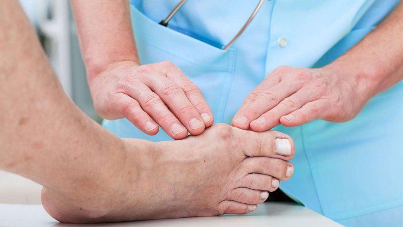 Подагра: признаки и симптомы болезни, лечение и профилактика, диета при подагре Lechenie-podagry-u-muzhchin-min-800x450