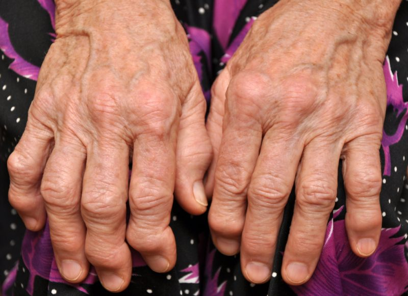 Подагра: признаки и симптомы болезни, лечение и профилактика, диета при подагре Ba-d-800x581