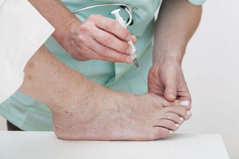 Подагра: признаки и симптомы болезни, лечение и профилактика, диета при подагре IStock_000027325623_XXXLarge-800x534