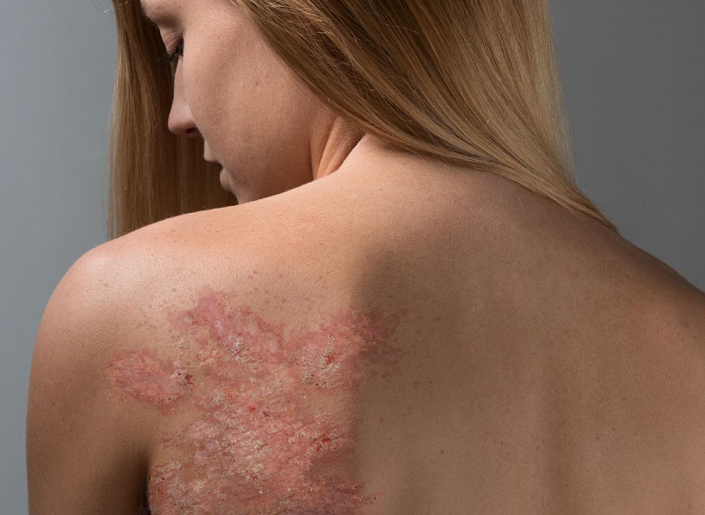 Симптомы и лечение псориаза у взрослых (фото) ? причины возникновения, откуда берется болезнь