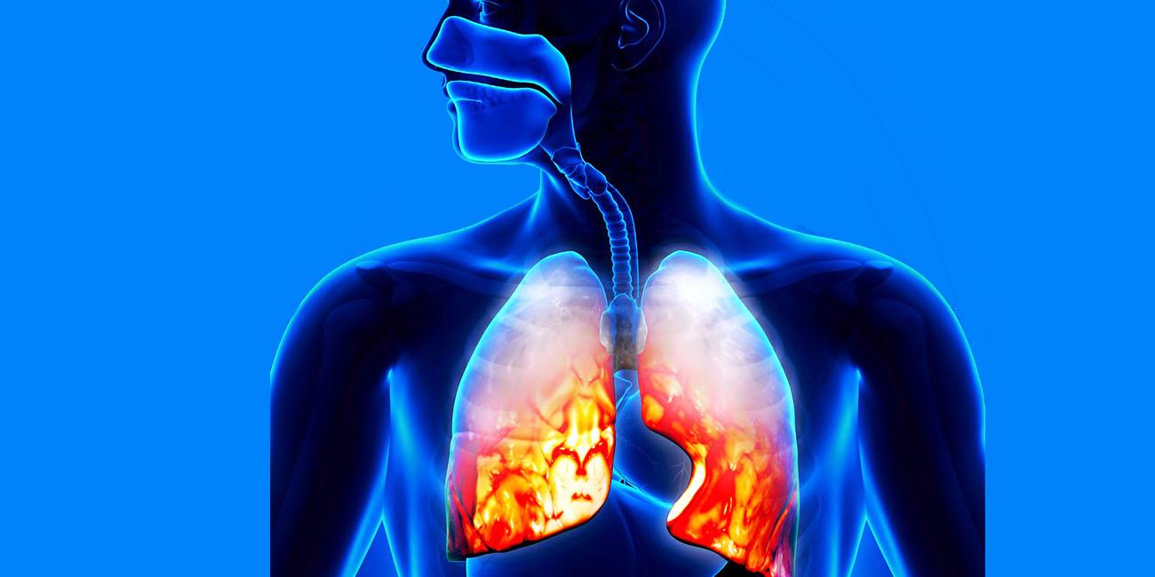 пневмония это заразно или нет