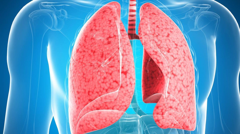 Картинка по пневмонии