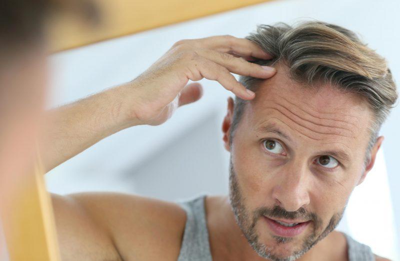 Сонник выпадение волос на голове прядями