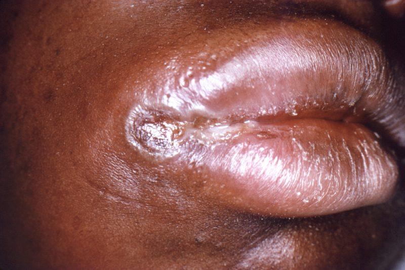Сифилис: как проявляется у мужчин и женщин, инкубационный период заболевания, первые признаки заражения