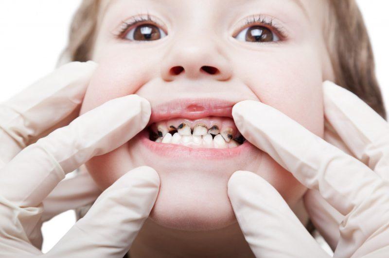 Сонник чистка зубов
