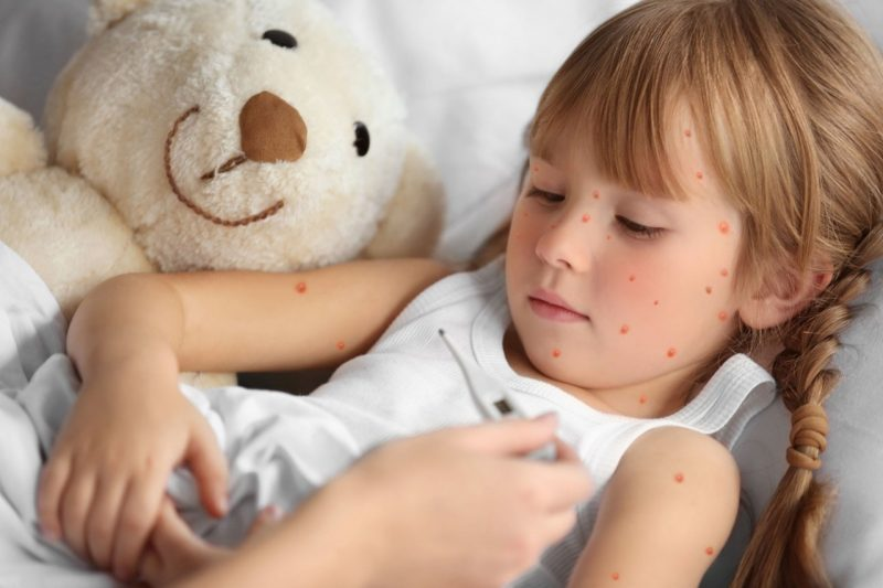 Чем снять зуд при ветрянке у ребенка: препараты и народные средства против зуда и раздражения при ветряной оспе