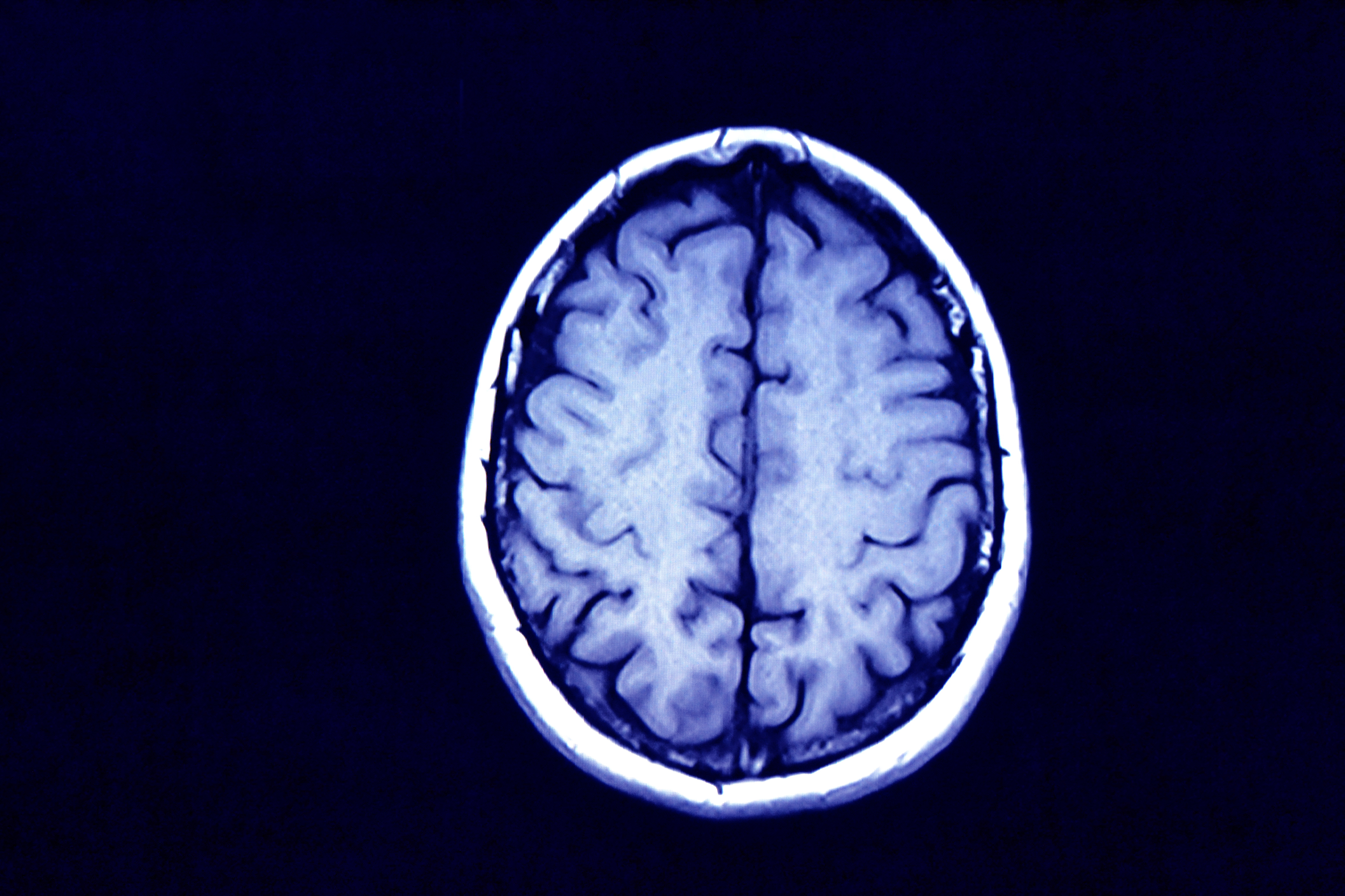 Лечение рассеянного склероза: симптомы, диагностика, лечение и профилактика заболевания