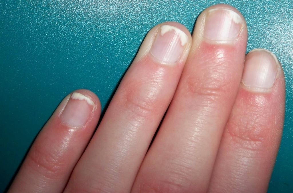 Псориаз Ногти Как Лечить
