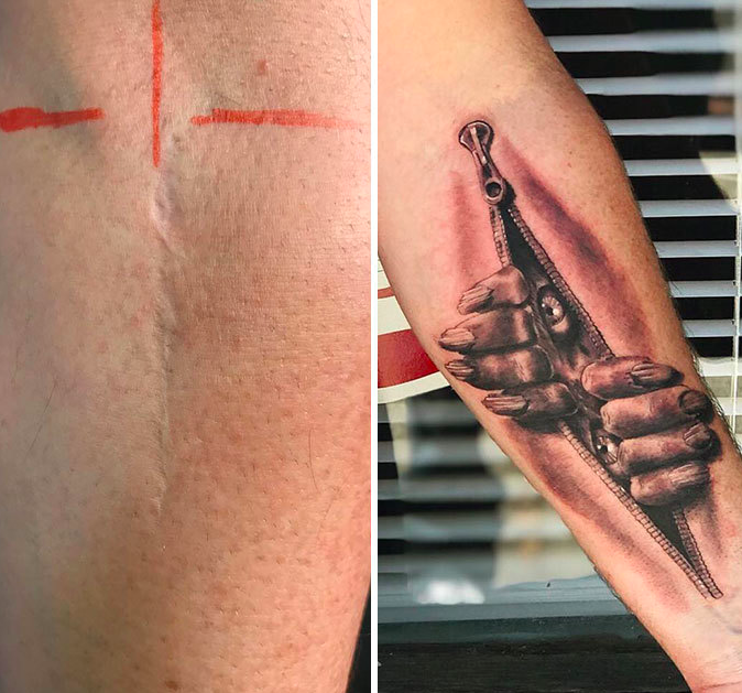 48 шрамов, превратившихся в объект искусства благодаря тату
