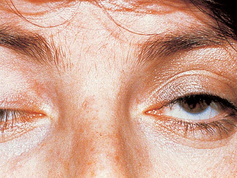 Миастения: симптомы, причины возникновения, формы, лечение и прогноз