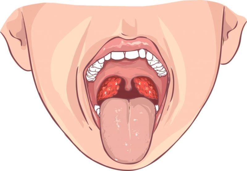 Картинки больное горло у ребенка