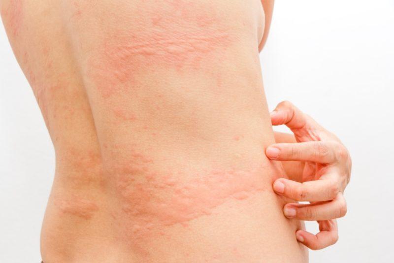 Холинергическая крапивница: симптомы и лечение у детей и взрослых, диета