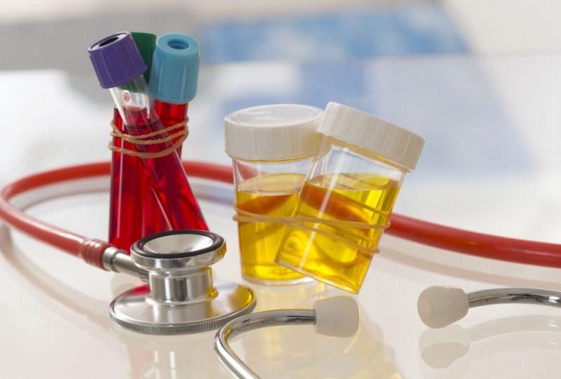 Астенотератозооспермия: что это за диагноз, можно ли забеременеть естественным путем, причины патологии, лечение